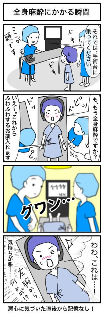 【親知らず抜歯】全身麻酔にかかる瞬間:4コマ漫画