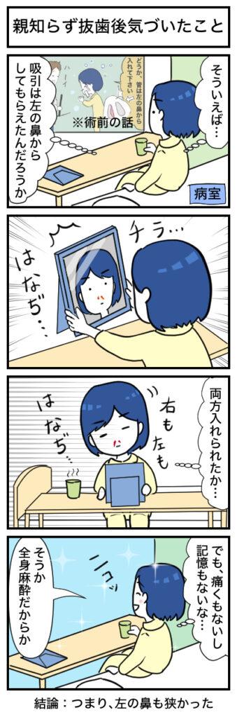 【親知らず抜歯】全身麻酔後にきづいたこと:4コマ漫画